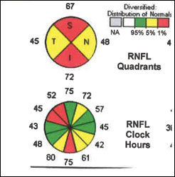 This patient who has undergone glaucoma treatment for several years maintains a normal visual field but marked loss of ganglion cells and RNFL.