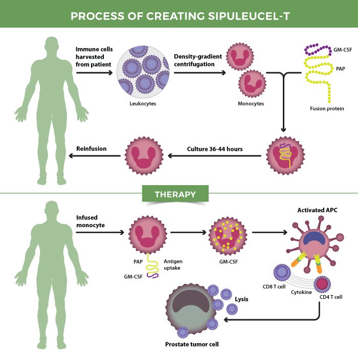 The process of creating sipuleucel-T.