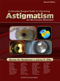 Complete Surgical Guide for Correcting Astigmatism