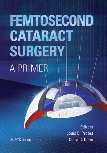 Dating complicated cataract
