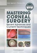 Mastering Corneal Surgery