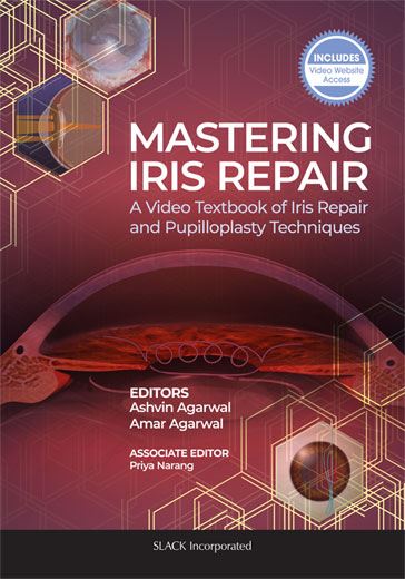 Mastering Iris Repair: A Video Textbook of Iris Repair and Pupilloplasty Techniques
