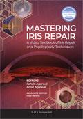 Mastering Iris Repair