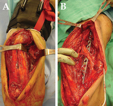 (A) Intraoperative photograph of a posterior approach to the humerus. The radial nerve is located on the posterior aspect of the intermuscular septum on the lateral side of the arm, between the retractors. The triceps is retracted medially. (B) Intraoperative photograph demonstrates the humerus has been exposed, debrided, and stabilized with a plate. The triceps is retracted medially. The radial nerve has been explored and is structurally intact. The radial nerve is demonstrated to be superficial to the plate