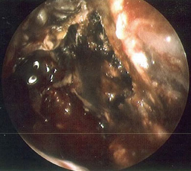 Endoscopic photograph of necrotic middle turbinate and ethmoid mucosa in a patient with biopsyproven Rhizopus (Mucor). Initial intraoperative tissue analysis was suggestive of Aspergillus nigrans
