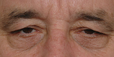Clinical photograph of a 55-year-old man with brow ptosis and dermatochalasis resulting in a tired facial appearance