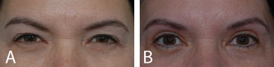 Pre- and postoperative clinical photographs of patient who underwent internal brow sculpting with removal of the corrugator and depressor supercilii muscles. (A) Preoperative photograph showing marked dermatochalasis and brow ptosis. (B) Postoperative photograph showing higher medial, central, and lateral brow position