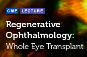 Regenerative Ophthalmology: Whole Eye Transplant