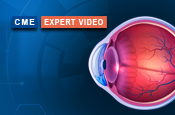 Diagnostic Strategies for the Detection of Glaucoma