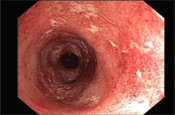 Clinical Case: Treatment of Moderate to Severe Ulcerative Colitis