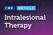 Intralesional Therapy