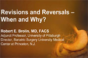 Revisions and Reversals – When and Why?