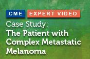 Case Study: The Patient with Complex Metastatic Melanoma