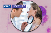 Clinical Advances and Emerging Trends in Melanoma: A Symposium at the Society for Melanoma Research 2019 Congress