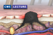 Melanoma—BRAF-Mutated Disease, Checkpoint Inhibitors, Emerging Trends, and Challenging Cases