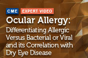 Ocular Allergy: Differentiating Allergic Versus Bacterial or Viral and its Correlation with Dry Eye Disease