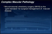 Combined Macular Surgery