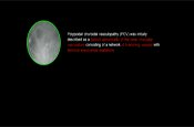 New Findings in Polypoidal Choroidal Vasculopathy