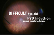 PVD Induction in a Difficult Hyaloid Case: Utilizing the Barbed Needle Technique