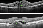 PRN Administration of Anti-VEGFs for Neovascular AMD