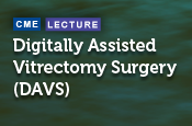 Digitally Assisted Vitreo-Retinal Surgery (DAVS)