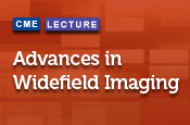 Advances in Wide-field Imaging