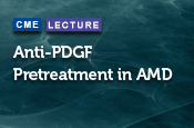 Anti-PDGF Pretreatment in AMD