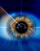 Premium cataract surgery knowledge challenge