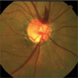 Figure 3. This large disc hemorrhage resulted from the microtrauma of an acute, symptomatic PVD and was fully resorbed by the patient's 1-month follow-up visit. More important to note is the thin neuroretinal rim tissue inferiorly.