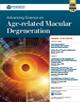 Macular Degeneration CME
