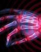 Rheumatoid Arthritis Video Perspectives