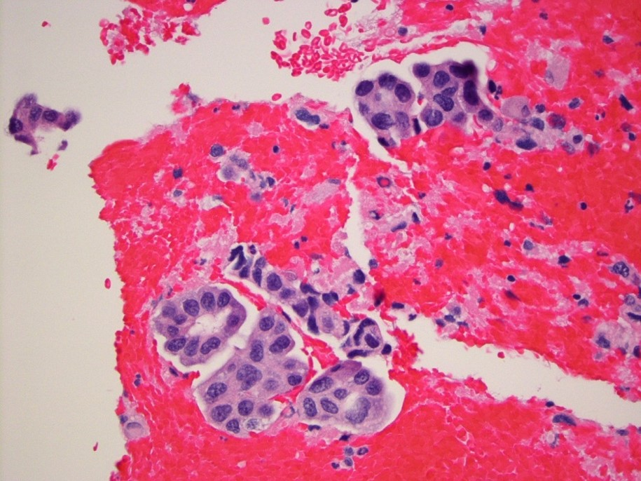 tumor board image