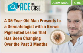 Ace the Case: A 35-Year-Old Man Presents to a Dermatologist with a Brown Pigmented Lesion That Has Been Changing Over the Past 3 Months