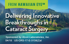 Delivering Innovative Breakthroughs in Cataract Surgery