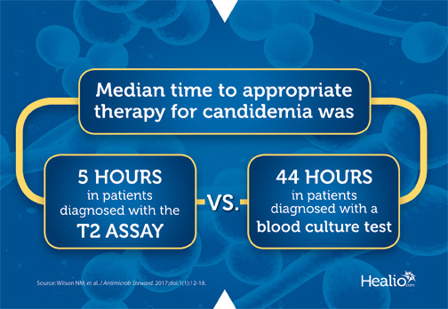 Median time to appropriate therapy for candidemia was 5 hours in patients diagnosed with the novel T2 assay compared with 44 hours in patients diagnosed with a blood culture test.