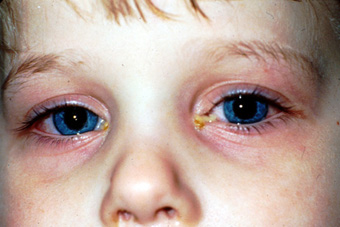 Slide 1. Bilateral H. influenzae conjunctivitis (culture positive) in a 3- year-old child.