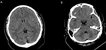 Shown here are two axial images from the non-contrast portion of the CT examination.