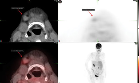CT image, PET image