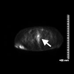 Figure 1a. A PET/CT scan on Jan. 7, 2013, demonstrated a discrete focus of abnormal metabolic activity with a maximum standard uptake value (SUV) of 4.9, corresponding to amorphous soft tissue inseparable from the normal vulvar folds.