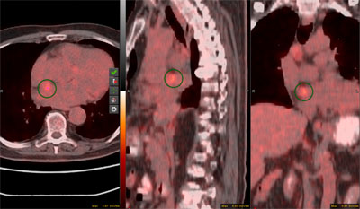 Figure 1. PET/CT fusion images in axial, sagittal and coronal planes show a hypermetabolic mass in the interatrial septum (maximum standard uptake value, 5.7), highly concerning for intracardiac metastatic disease.