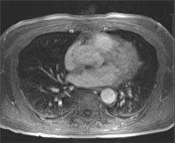 Figure 4. There is prompt enhancement of the interatrial septum mass on perfusion imaging. The findings are consistent with intracardiac metastasis to the interatrial septum.
