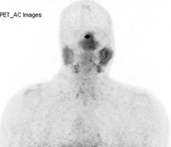 68Gallium-DOTATATE coronal maximum-intensity projection image of the head and neck demonstrates physiologic radiotracer uptake within the pituitary gland, nasopharynx and salivary glands (Figure 3A).