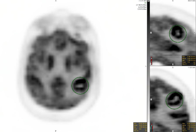 Figures 7a, 7b and 7c. Fused PET/MRI images demonstrate focal, markedly increased FDG uptake associated with the peripherally enhancing lesion in the left postcentral gyrus (standard uptake value, 13.1).