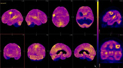 Figure 8. 18F -FDG PET surface maps demonstrate normal distribution of FDG uptake in the remainder of the brain parenchyma.