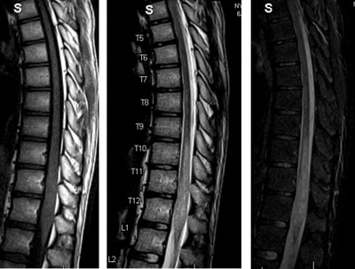 Figure 1A. Sagittal T1-weighted image, T2-weighted image and short tau inversion recovery views of the lower thoracic and lumbar spine