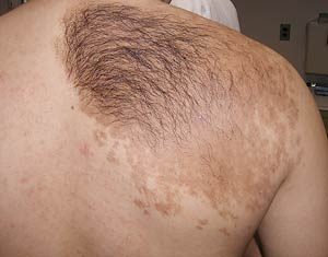 A 17 year old boy with a brown patch hair a well demarcated brown patch with very dark hair overlying it and smaller tan macules urmus Choice Image