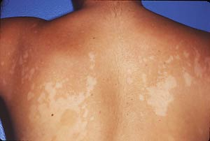 A 13-year-old biracial girl with asymptomatic rash