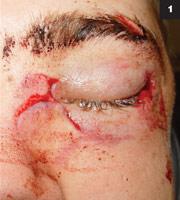 facial-lacerations-repair-emedicine