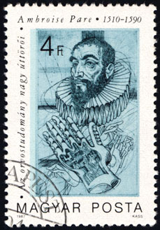 This commemorative stamp was printed in Hungary in 1987 to honor Ambroise Paré.