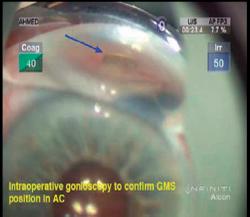 Gonioscopy is a helpful adjunct during surgery to assess the position of